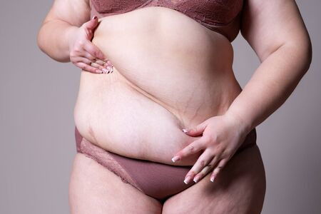 Tummy tuck, flabby skin on a fat belly, plastic surgery concept on gray background Banco de Imagens