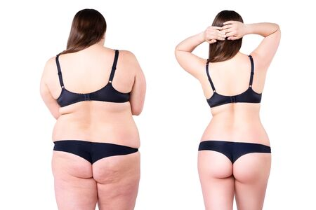 Woman's body before and after weight loss isolated on white background, plastic surgery concept Zdjęcie Seryjne