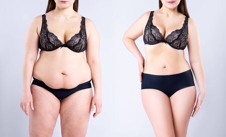 Woman's body before and after weight loss on gray background, plastic surgery concept Standard-Bild