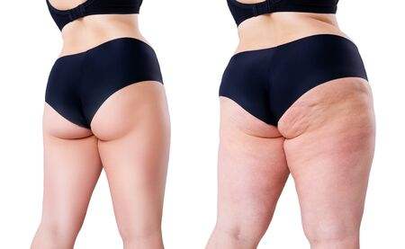 Overweight woman with fat legs and buttocks, before after weight loss concept, obesity female body isolated on white background Standard-Bild