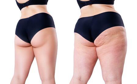 Donna sovrappeso con gambe e glutei grassi, prima dopo il concetto di perdita di peso, corpo femminile obesità isolato su sfondo bianco Archivio Fotografico