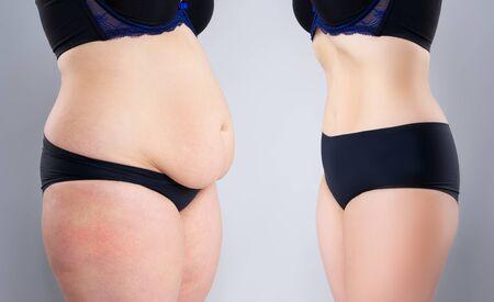 Bauch der Frau vor und nach Gewichtsverlust auf grauem Hintergrund, Konzept der plastischen Chirurgie