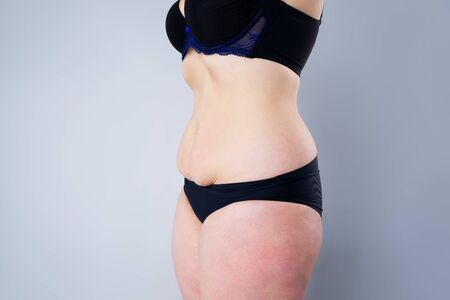 Tummy tuck, flabby skin on a fat belly, plastic surgery concept on gray background Zdjęcie Seryjne