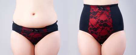 Woman's body before and after weight loss, flabby belly after pregnancy, fat woman in corrective panties on gray background, plastic surgery concept