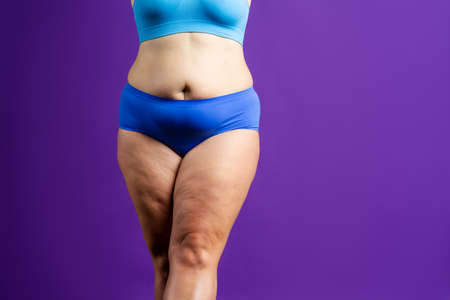 Tummy tuck, flabby skin on a fat belly, plastic surgery concept on purple background Standard-Bild
