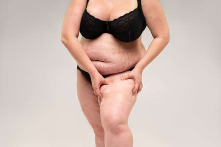Overweight woman with fat legs, obesity female body on gray background, studio shot