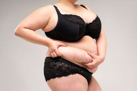 Tummy tuck, flabby skin on a fat belly, plastic surgery concept on gray background 版權商用圖片