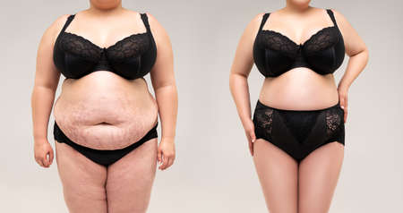 Woman's body before and after weight loss on gray background, plastic surgery concept 版權商用圖片