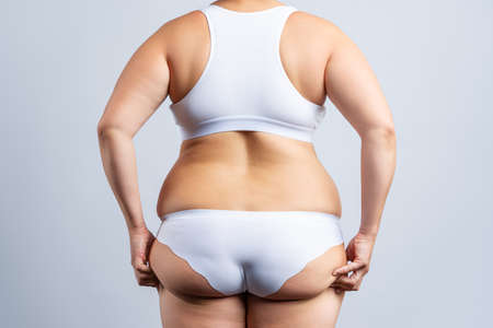 Overweight woman with fat hips and buttocks, obesity female body on gray background, studio shot