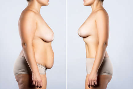 Before and after breast augmentation concept, woman with large silicone breasts after correction surgery and liposuction on gray background Zdjęcie Seryjne