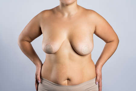 Female breasts, woman with nipple stickers on gray studio background