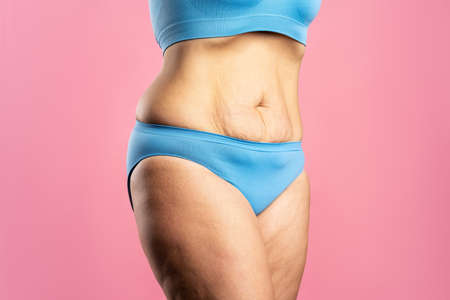 Tummy tuck, flabby skin on a fat belly, plastic surgery concept on pink background