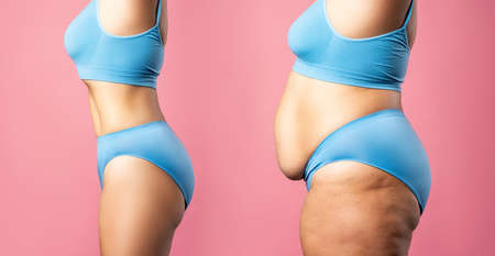 Woman's body before and after weight loss on pink background, plastic surgery concept Zdjęcie Seryjne