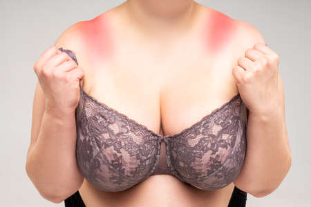 Fat woman with irritated skin under bra, irritation on the body from underwear on gray background, painful area highlighted in red Zdjęcie Seryjne