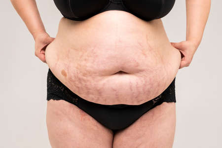 Tummy tuck, flabby skin with stretch marks on a fat belly, plastic surgery concept on gray background