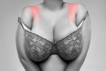 Fat woman with irritated skin under bra, irritation on the body from underwear, painful area highlighted in red
