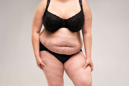 Fat woman in black lingerie, overweight female body on gray background, plastic surgery concept