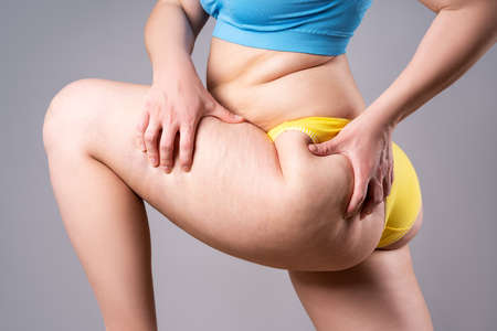 Overweight woman with fat thighs and buttocks, obesity female legs on gray background