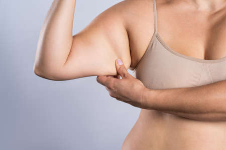 Sagging flabby skin on a woman's arm, gray background