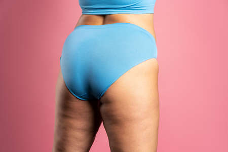 Overweight woman with fat hips and buttocks, obesity female body on pink background, studio shot