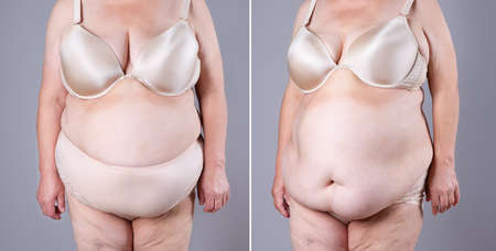 Woman's body before and after weight loss on gray background, plastic surgery concept