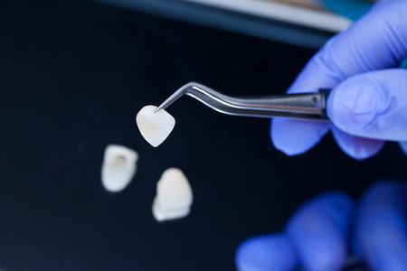 Un dentiste tient une pince à épiler pour les facettes et couronnes en céramique dentaire. Main de plan rapproché dans le gant bleu