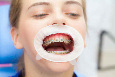 Closeup of young woman's teeth with braces and retractor for mouth. Patient at the dentist Stock Photo