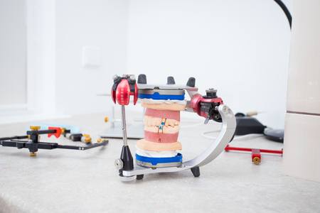 The model of the jaw in the articulator for the study of bite and joint removed in the doctor's office against the background of other tools orthodontist lying on the table