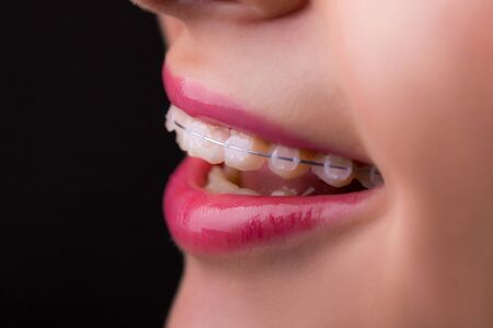 Braces. Beautiful Woman healthy smile close up. Closeup Ceramic Braces on Teeth. Beautiful Female Smile with Braces. Orthodontic Treatment. Dental care Concept. Beautiful Lips and Teeth Imagens