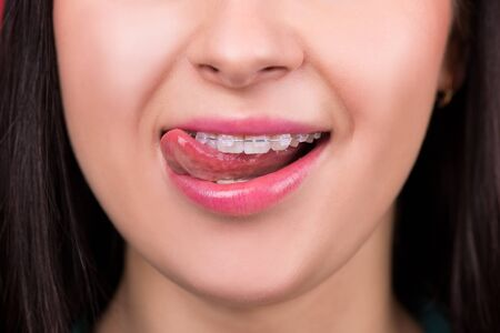 Smiling happy woman mouth with tongue and braces