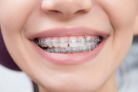 Uśmiechający się szczęśliwa kobieta usta z językiem i nawiasami klamrowymi. Korekcja zgryzu w ortodoncji w stomatologii. przedni widok
