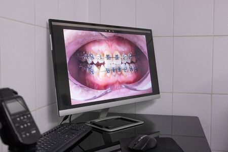 Close-up photograph of a jaw with braces on a computer monitor. Orthodontics, photographic protocol