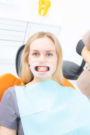 Patient with retractor in dentist office looking at camera