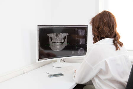 female dentist sits and looks at the x-ray image of the tooth in the computer. A woman doctor examining a patients tooth with a panoramic radiograph. Diagnostics. Stock Photo