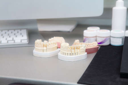 Jaw model on the table in the dental clinic. Against the background of a computer and keyboard