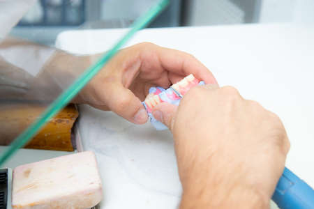 The hands of a dental technician are working on an artificial tooth using a dental instrument, a drill.