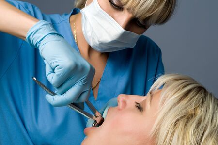 tooth extraction using forceps, special dental instrument for teeth removal Stock Photo