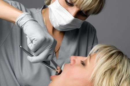 oral surgery: tooth extraction using forceps, special dental instrument for teeth removal Stock Photo