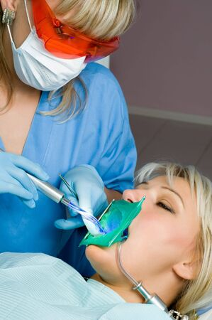 dentistry, tooth cavity filling using special polymer with ultraviolet hardening Stock Photo - 3682426