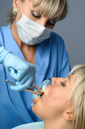 tooth extraction: Tooth extraction