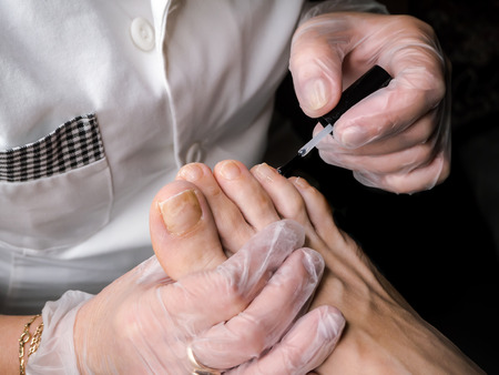 Treatment of therapeutic nail Polish on the feet. Foot therapy