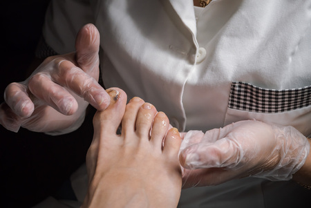 Bruising on the toes. Foot therapy with healing ointments. Banque d'images