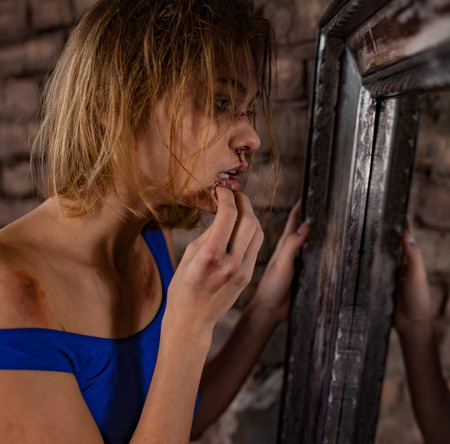 Beaten young woman victim of domestic violence and abuse stands near mirror with hanky and wipes bruises and wounds on her face. Сoncept of domestic violence, sexual violence and cruelty.
