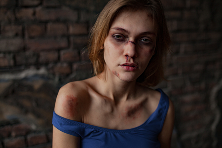 Beaten sad woman victim of domestic violence and abuse stands with bruises and wounds on her face and body. Ð¡oncept of domestic violence, sexual violence and cruelty. Portrait. Stock Photo
