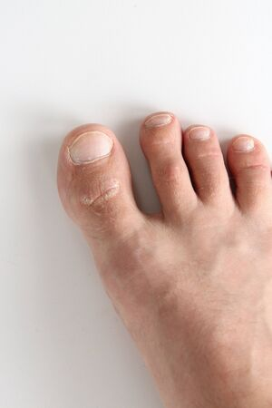 Mans foot on a white background. The leg of a white man. Big toe closeup.