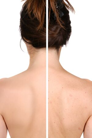 Left side: good and smooth skin after treatment - right side pimples and bad skin before treatment