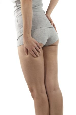 prickling: Woman controlling her cellulite Stock Photo