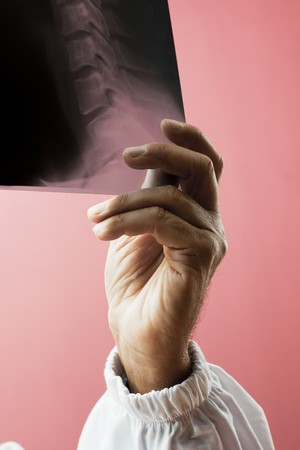third age: Doctors hand holding x-ray