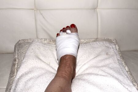 recovery position: Foot after Mortons neuroma surgery