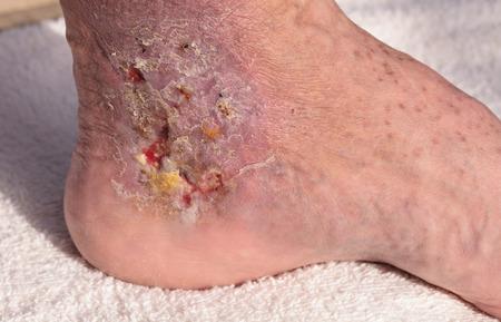 医用画像: 静脈炎と静脈血栓による足首の皮膚に感染蜂巣炎。 写真素材